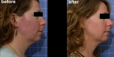 True picture by Discoverylaser, laserfacial & Oxygen facial combo, 8 weeks after last treatment