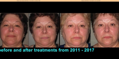 True picture by Discoverylaser, before and after 6 years with maintenance of Anti-aging facials