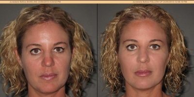 Juvederm Voluma, Volbella Filler by Dr. Jacobs