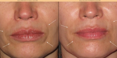 Juvederm Volift Filler by Dr. Jacobs