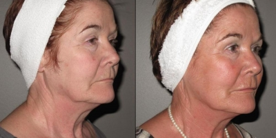 Juvederm Voluma Filler by Dr. Jacobs