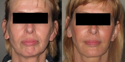 Juvederm Filler by Dr Jacobs