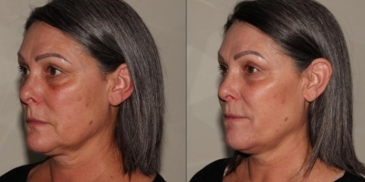 Beauty Decoded with Juvederm by Dr Jacobs