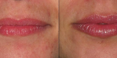Juvederm Filler by Dr. Jacobs