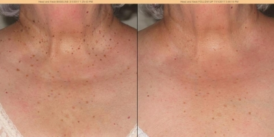 True Picture by Discoverylaser, Skin Tags Removal after 1 Treatment