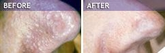 Sebaceous hyperplasia, before &after