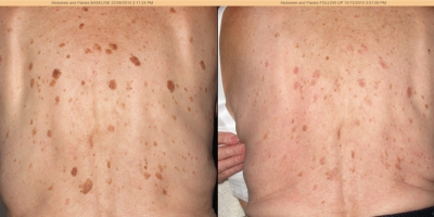 Picture by Discoverylaser, Fibroma, Keratosis, after 1 treatment