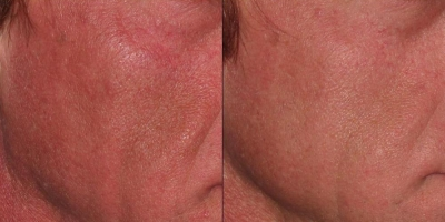 True picture by discoverylaser,after 6 treatments