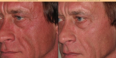 True picture by discoverylaser after 6 treatments
