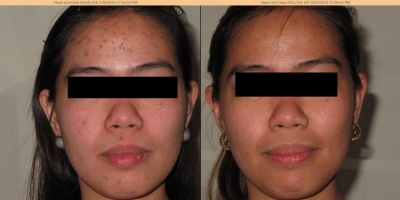 Picture by Discoverylaser, after 3 voluderm treatments