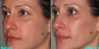 Picture by Discoverylaser after 6 treatments