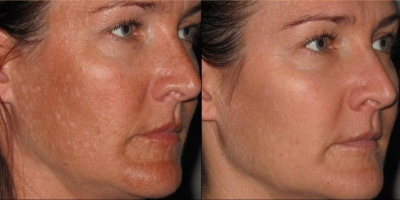 Picture by Discoverylaser, after 2 chemical Peels + product regime