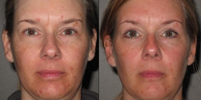 Picture by Discoverylaser, after 5 chemical Peels + product regime