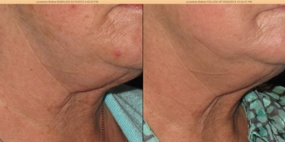 Picture by Discovery laser, Neck, after 8 treatments