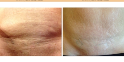 Picture by Discovery laser,Abdominals, 8 weeks after