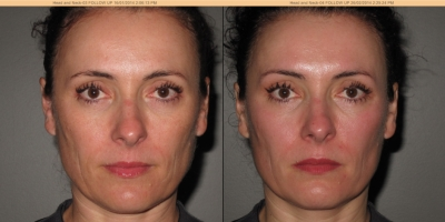 Picture by Discovery laser, Face after 8 treatments