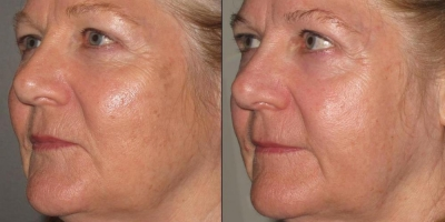 True Picture by Discovery Laser, 4 month after 2nd Treatment