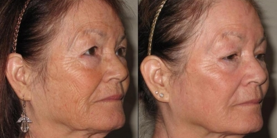 True Picture by Discovery Laser, 6 month after one Treatment