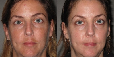 True picture by discoverylaser, 4 month after ZO regimen