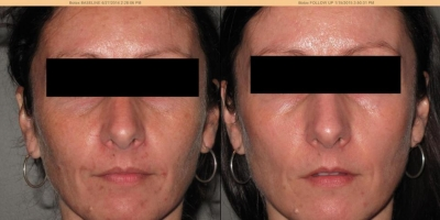 True  picture by discoverylaser, 4 after ZO regimen