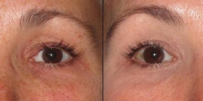 True picture by discoverylaser,  1 month after ZO intense eye repair