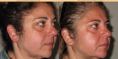 True picture by discoverylaser, 4 month after treatment regime