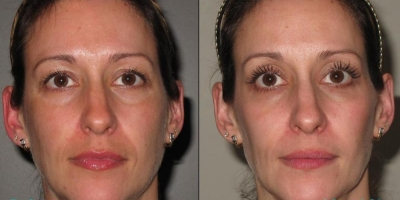 Picture by Discoverylaser after 6 voluderm treatments
