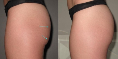 Picture by Discoverylaser Buttock lift after 8 treatments