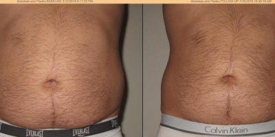 Picture by Discoverylaser, circumference reduction after 8 treatments