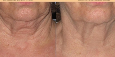 True Picture by Discoverylaser, 3 month after 6 Oxygeneo with TriPollar Treatments