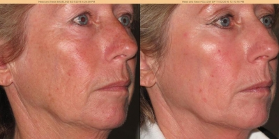 True picture by Discoverylaser after 6 oxygeneo treatments
