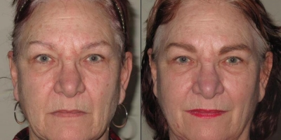 True picture by discoverylaser, Anti-aging facial regimen after 6 treatments