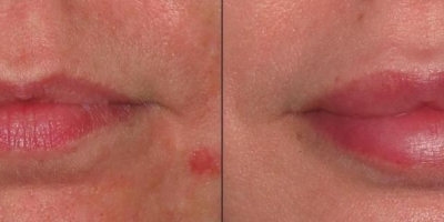 Juvederm Volbella Filler by Dr. Jacobs