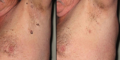 Picture by Discoverylaser, Keratosis,Skin Tag after 1 treatment