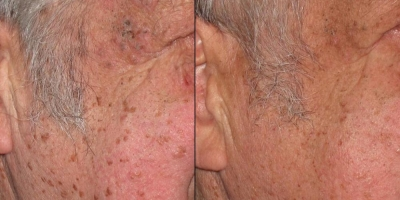 Picture by Discoverylaser, Fibroma, Keratosis,Skin Tag after 1 treatment
