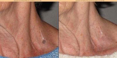 Picture by Discoverylaser, Keratosis, after 1 treatmen