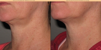 Picture by Discovery laser, Face & Neck after 8 treatments