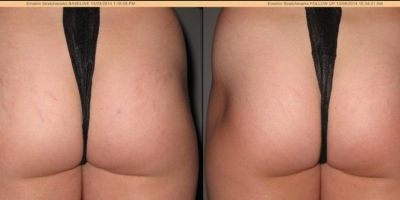 Pic. by DL,Stretchmarks after one ematrix treatment plus 3 venus freeze treatments