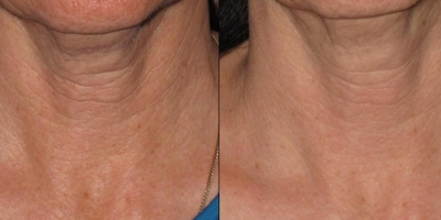 Picture by Discovery laser, Neck after 8 treatments