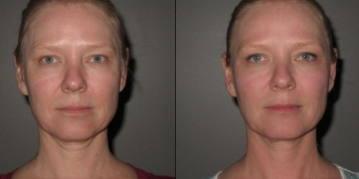 Picture by Discovery laser, Face & Neck, after 8 treatments