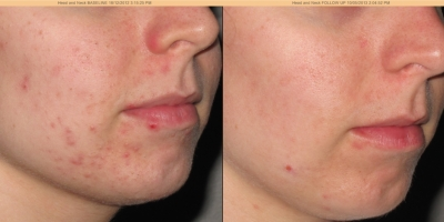 Picture by Discoverylaser, after 3 Chemical Peels,acne
