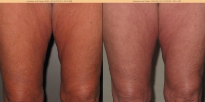 Picture by Discoverylaser, cellulite and skin tightening after 8 treatments