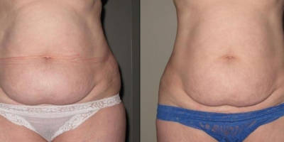Picture by Discoverylaser  circumference reduction after 8 treatments