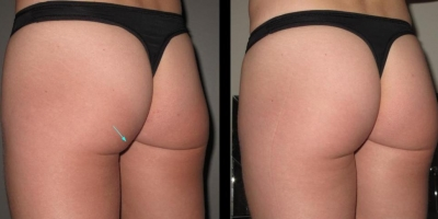 Picture by Discoverylaser, Buttock lift  after 8 treatments
