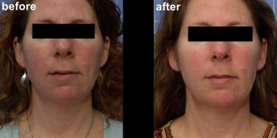 True picture by Discoverylaser, 8 weeks after Laserfacial and Oxygen treatments