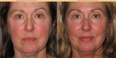 True picture by Discoverylaser, 8 weeks after Laserfacial
