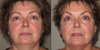 True Picture by discoverylaser after two treatments