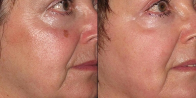 True Picture by discoverylaser after otwo treatments