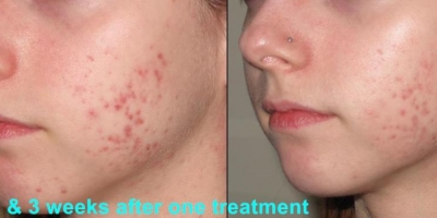 True Picture by discoverylaser, 3 weeks after one treatment