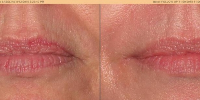 True picture by discoverylaser, after 2 CO2 treatments